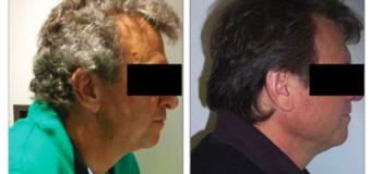 (News in Slow Portuguese) O tratamento experimental para câncer que devolveu a cor aos cabelos dos pacientes grisalhos